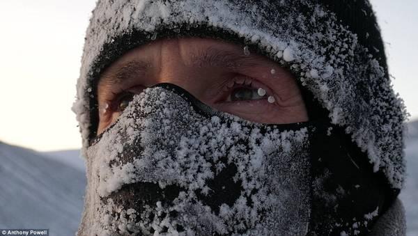 Độ ẩm không khí tại Nam Cực bằng 0, và nếu có chút hơi ẩm nào, lập tức nó sẽ bị đóng băng. Bức ảnh chụp Anthony đeo chiếc mũ kín mặt và hơi thở của ông bị đóng băng tại chỗ.