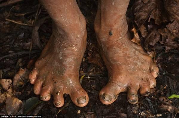 Người Huaorani có bàn chân biến dạng vì thường xuyên trèo cây